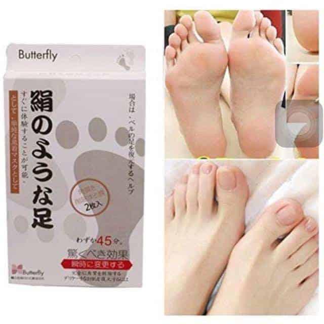 Butterfly Japan Foot Peel showing results on feet