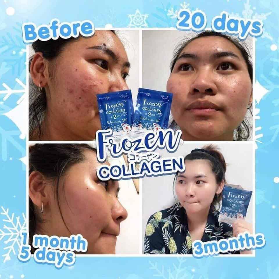 Buy Frozen Collagen Supplements from Thailand - Pretty Me Philippines