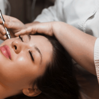 Microneedling for Acne Scars: Should You Try It?