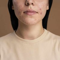 confident-young-woman-with-acne-close-up (1)